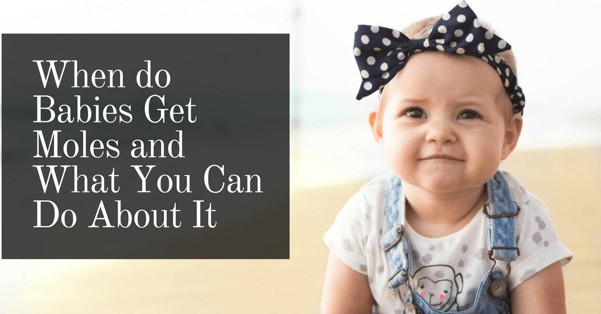 When do Babies Get Moles and What You Can Do About It