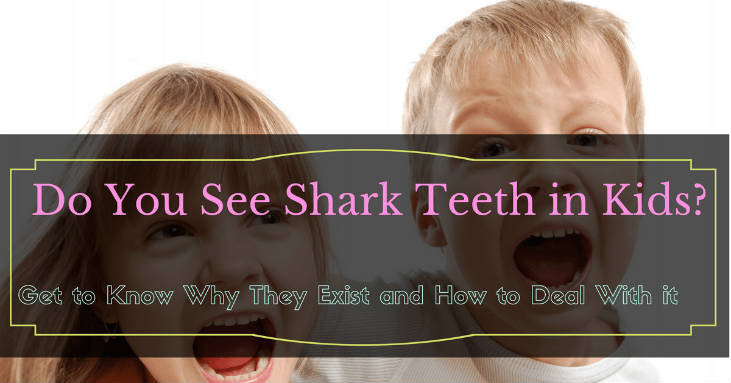 Shark-Teeth-in-Kids